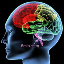 Brain stem abnormalities in ME/CFS (CFS)