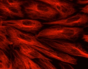 Endothelial cells image where a protein, tubulin, has been stained to make the cells more visible.