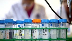 Blood Tests - NHS