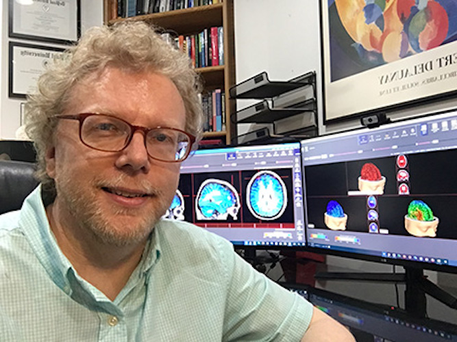 Photo of Dr. Mark Zinn in front of his computers with brain images on the screens.