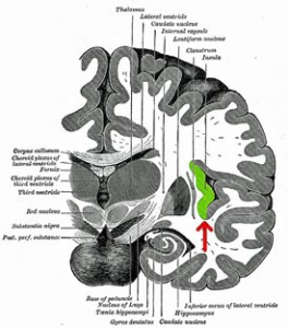 Could over-activation of the insula cause problems with stimuli and pain in CFS?