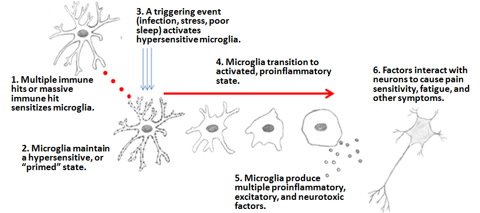 The Microglia Priming hypothesis, as explained by Dr Jarrod Younger