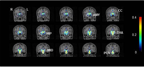Representative PET scans showing activated microglia in a CFS/ME patient. AMY, amygdala; CC, cingulate cortex; HIP, hippocampus; MID, midbrain; THA, thalamus; and PON: pons. Credit: Image courtesy of RIKEN