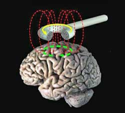 Transcranial magnetic stimu1