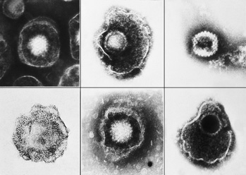 5221 Herpesviruses sm