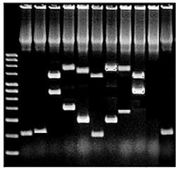 PCR Gell, testing  for XMRV and CFS
