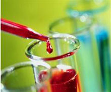 XMRV - a contaminant or a pathogen in CFS?