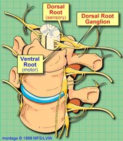 Dorsal Root Ganglia - Ground Zero for chronic fatigue syndrome?