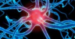 Microglia Activation in CFS causes pain and fatigue